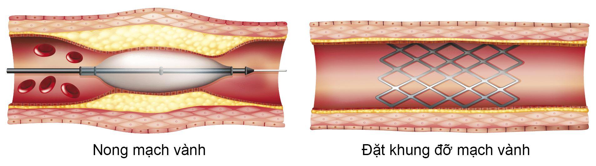 Nong mạch vành và đặt khung đỡ mạch vành